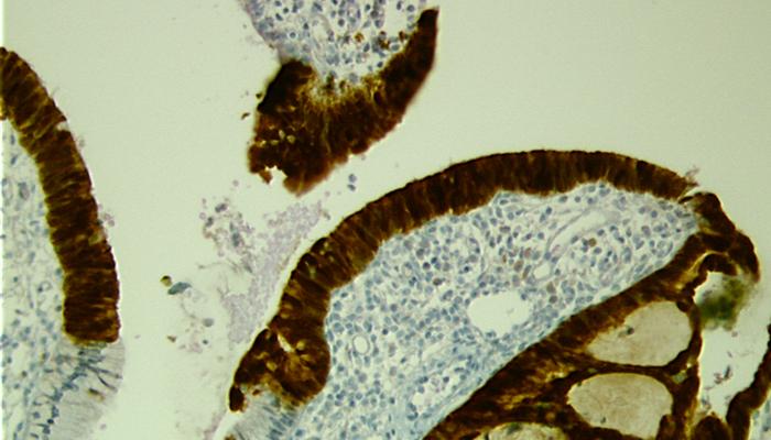 E-MoD-SD glanduär 16-20x bei Pathologie Schleswig-Holstein