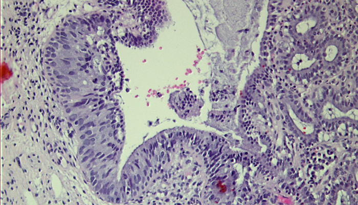 MoD-SD glandulär 20x bei Pathologie Schleswig-Holstein