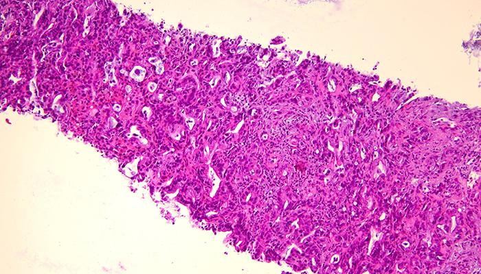 Stanzbiopsie-Tumor bei Pathologie Schleswig-Holstein