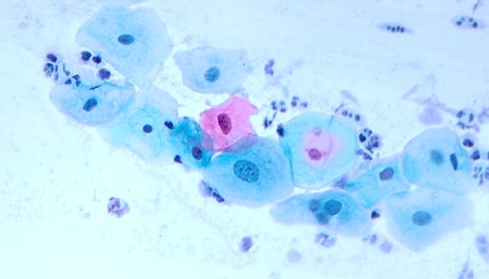 Zytologie Zervix - Pathologie Schleswig-Holstein